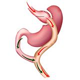 Imagen ilustrativa del bypass gastrico