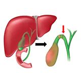 Imagen ilustrativa extracción de vesicula