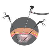 Imagen ilustrativa de laparoscopia