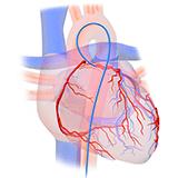 Imagen ilustrativa de Angiografia coronaria