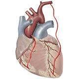 Imagen ilustrativa de Bypass coronario