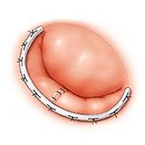 Imagen ilustrativa de Cirugia valvular