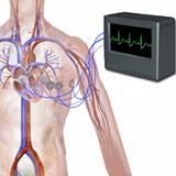 Imagen ilustrativa de Electrocardiograma