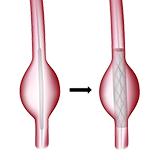 Imagen ilustrativa de Reparación endovascular