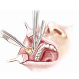 Imagen ilustrativa de una Bichectomía
