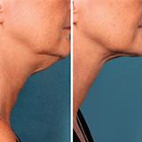 Imagen ilustrativa de una Liposucción de cuello