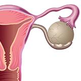Imagen ilustrativa para quistes ovaricos