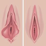 Imagen ilustrativa Labioplastia
