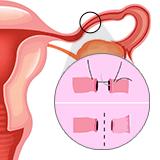 Imagen ilustrativa Ligadura de trompas
