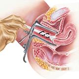 Imagen ilustrativa Papanicolaou y VPH