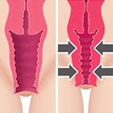 Imagen ilustrativa Rejuvenecimiento vaginal