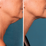 Imagen ilustrativa de liposuccon de cuello