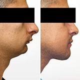 Imagen ilustrativa de cirugia ortognatica