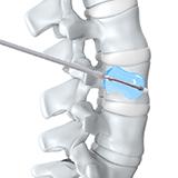 Imagen ilustrativa de aumento vertebral