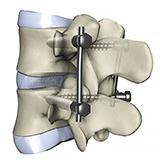 Imagen ilustrativa de Fusion espinal