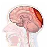 Imagen ilustrativa de Hematoma subdural cronico