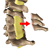 Imagen ilustrativa de Laminectomia