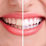 Imagen ilustrativa de blanquamiento dental