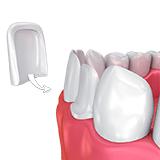 Imagen ilustrativa de carillas dentales