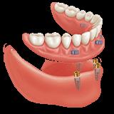 Imagen ilustrativa de dentadura sobre implantes