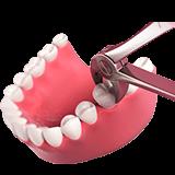 Imagen ilustrativa de extracción dental