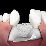 Imagen ilustrativa de injerto oseo dental