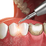 Imagen ilustrativa de limpieza dental
