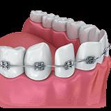 Imagen ilustrativa de tratamiento de ortodoncia