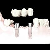 Imagen ilustrativa de puente fije con implantes
