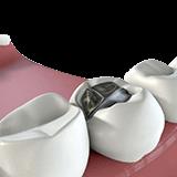 Imagen ilustrativa de rellenos dentales