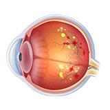 Imagen ilustrativa retinopatia diabetica
