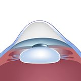 Imagen ilustrativa de cornea