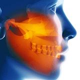Imagen ilustrativa de cancer de boca