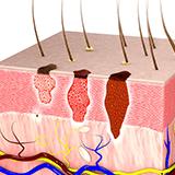 Imagen ilustrativa de cancer de piel