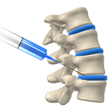 Imagen ilustrativa de una biopsia de huesos