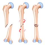 Imagen ilustrativa fractura de hueso