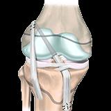 Imagen ilustrativa reconstruccion de ligamento cruzado anterior