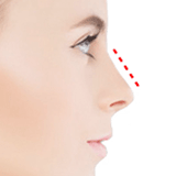 Imagen ilustrativa Cirugia de nariz