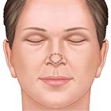 Imagen ilustrativa Reconstruccion nasal