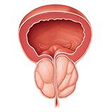 Imagen ilustrativa de HPB