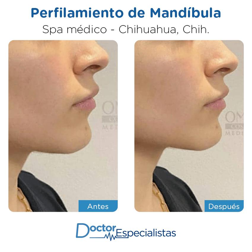 Pacientespa médico                                          Chihuahua antes y despues