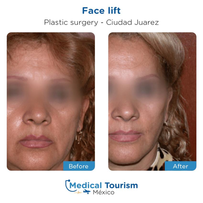 Paciente Cirugia Plastica Ciudad Juarez antes y despues Insignia doctor verificado