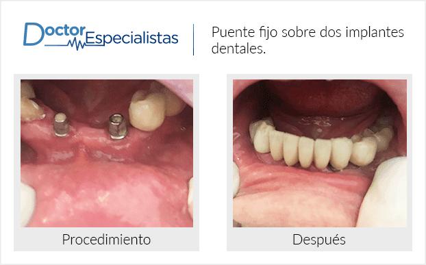 Pacientedentista / Implantología                                           Ciudad Juárez antes y despues
