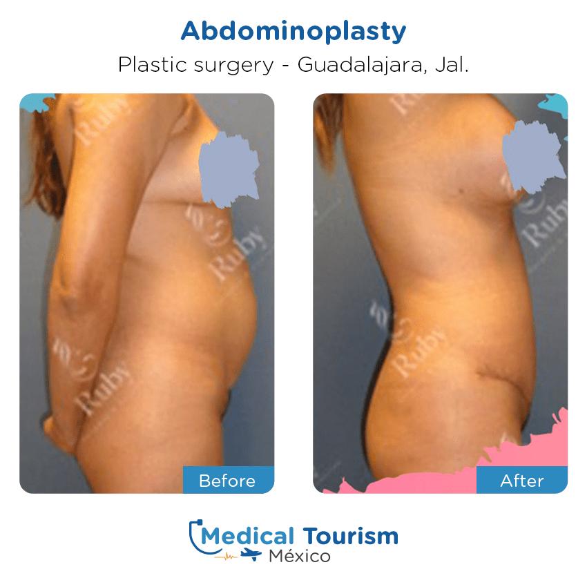 Paciente cirugía plástica                                          Guadalajara antes y despues