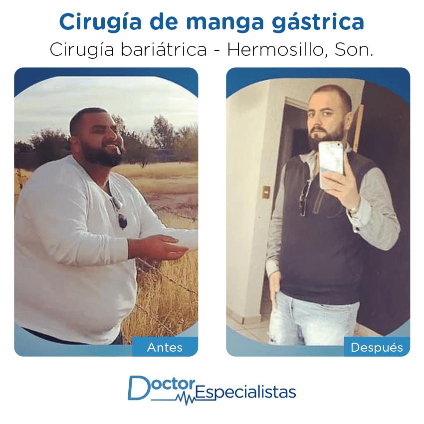 Paciente cirugía bariátrica                                          Hermosillo antes y despues