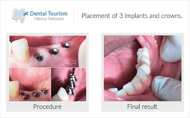 PacienteDentista / Implantología                                           Los Algodones antes y despues