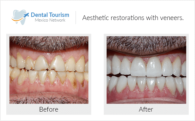 PacienteDentista / Implantología                                           Mazatlán antes y despues