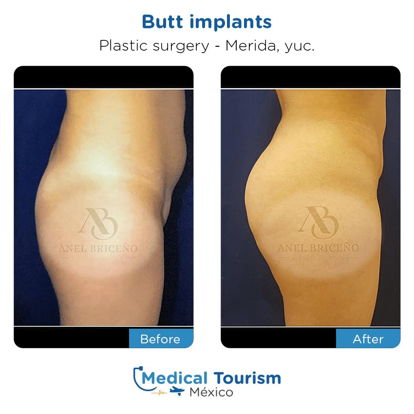 Paciente cirugía plástica                                          Mérida antes y despues