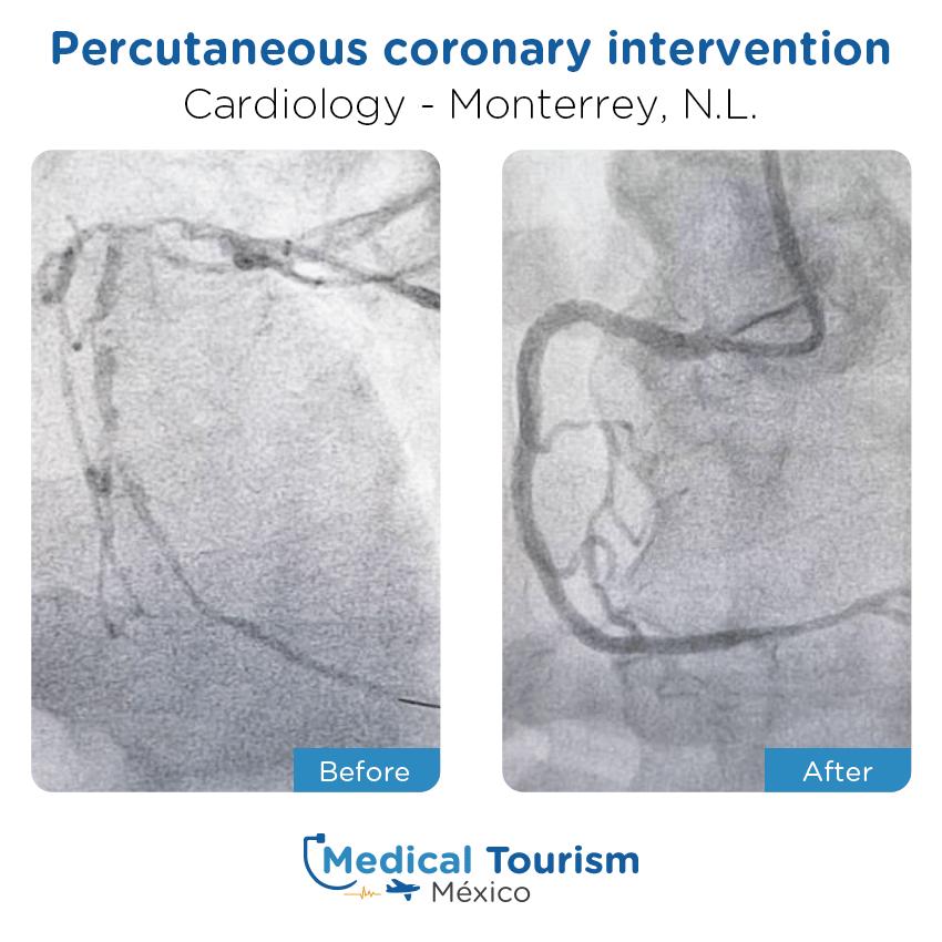 Paciente cardiología                                          Monterrey antes y despues