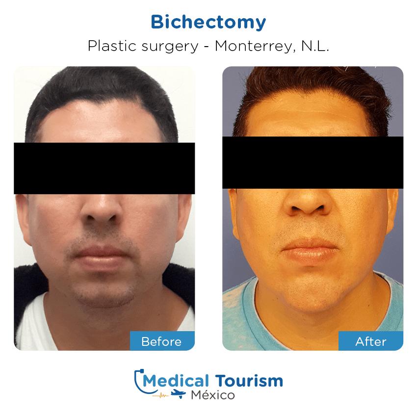 Pacientecirugía plástica                                          Monterrey antes y despues